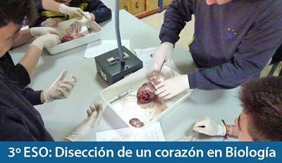 corazon-diseccion_opt